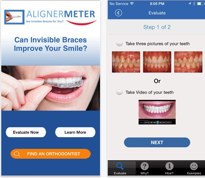 AlignerMeter! By Great Smiles LLC