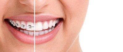 Top Dentist NYC